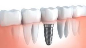 tratamiento-implantes