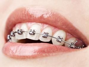 tratamiento-ortodoncia1