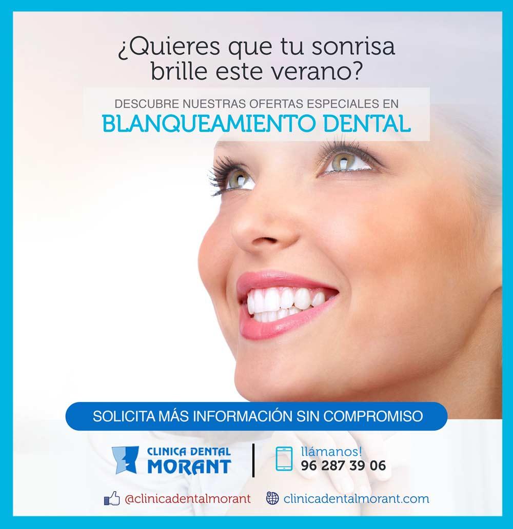 Blanqueamiento dental promoci n verano 2017 cl nica - Clinica dental gandia ...